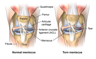 Anatomy of the knee showing a healthy meniscus and a torn meniscus.